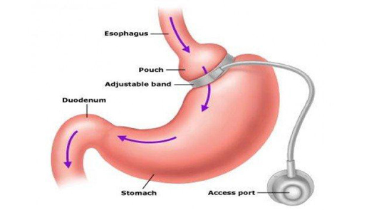 gastric bypass and gastric band Mini gastric bypass surgery is a simplified version of the traditional gastric bypass and is an effective weight loss surgery option that can help you.