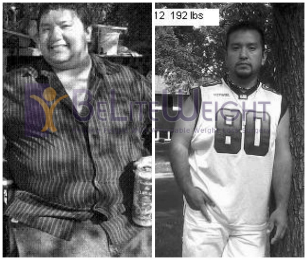 Ramon's Amazing Weight Loss Surgery Before and After Photos