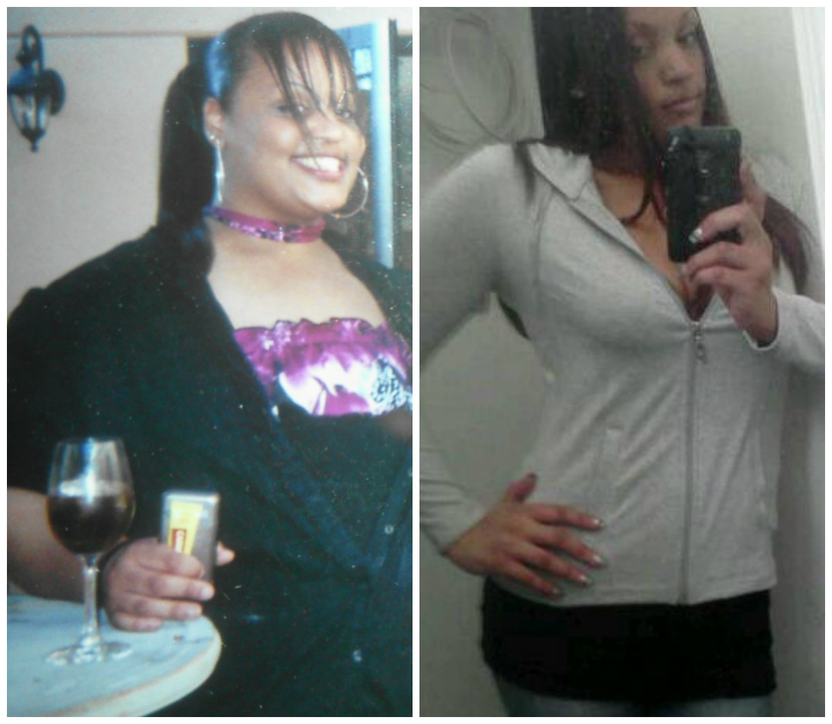 Lakeeta S Before And After Gastric Bypass Photos And Story