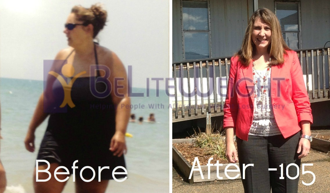 Tracy S Amazing Weight Loss Surgery Journey And Photos