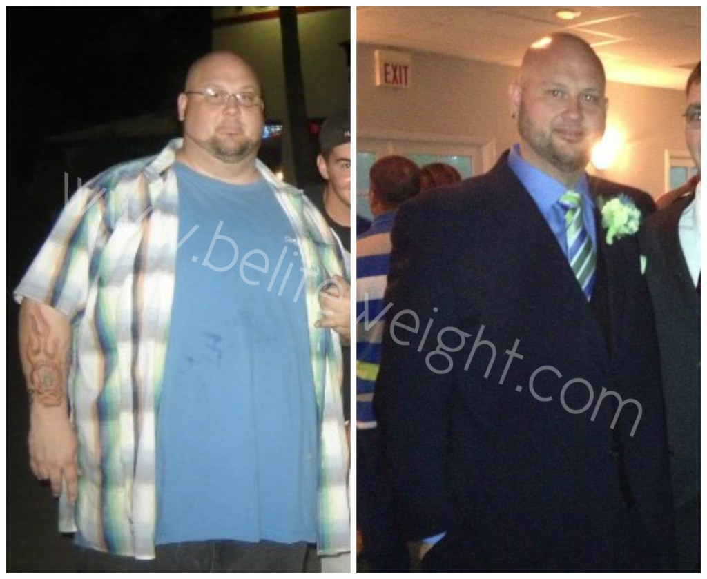 Brian's Long Term Before and After Gastric Sleeve Success Story & Photos