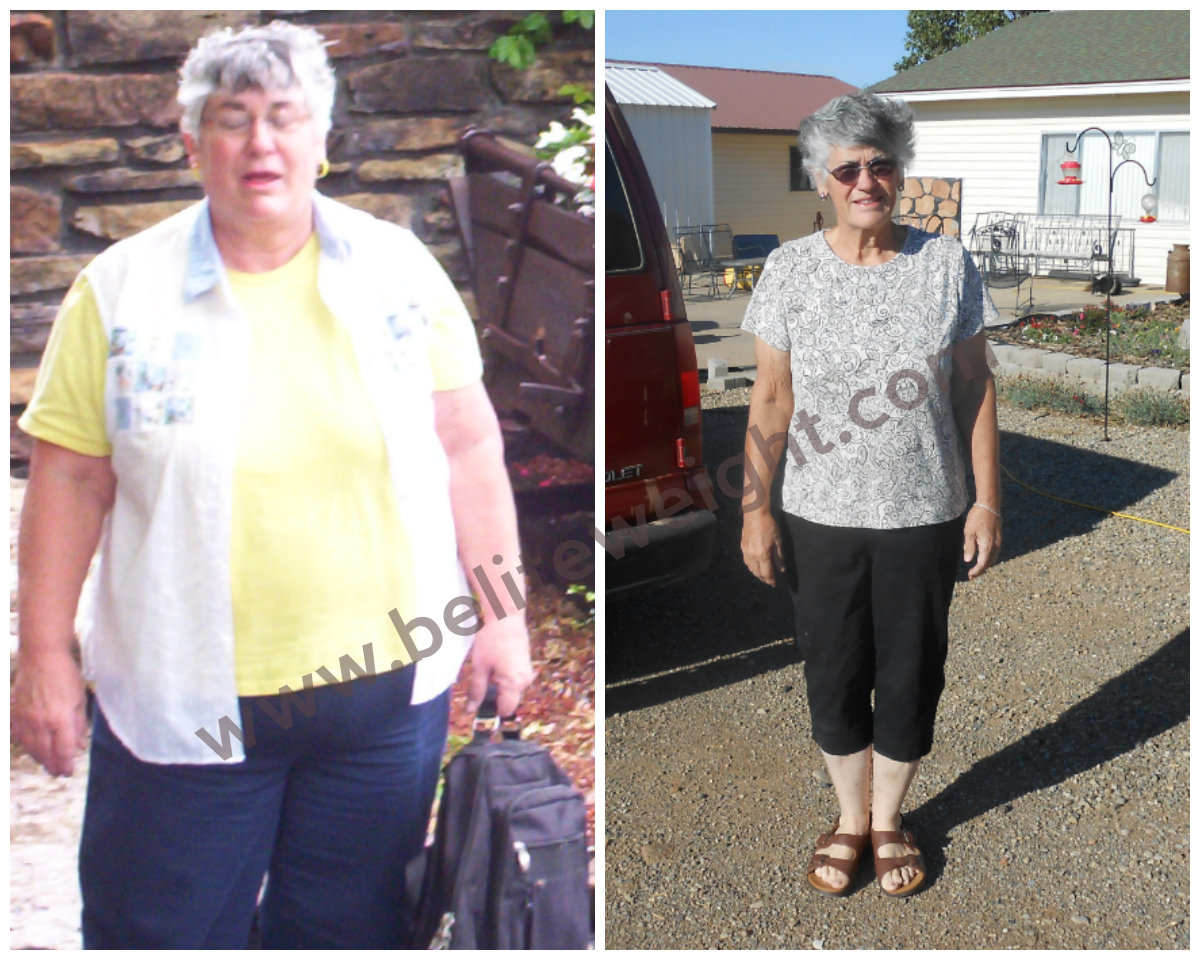 Carolyn's Medicare Paid Gastric Bypass Success Story & Photos BeLiteWeight Weight Loss Services