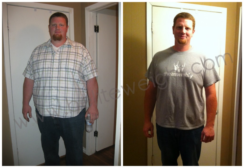 Before And After Weight Loss Surgery Photos.