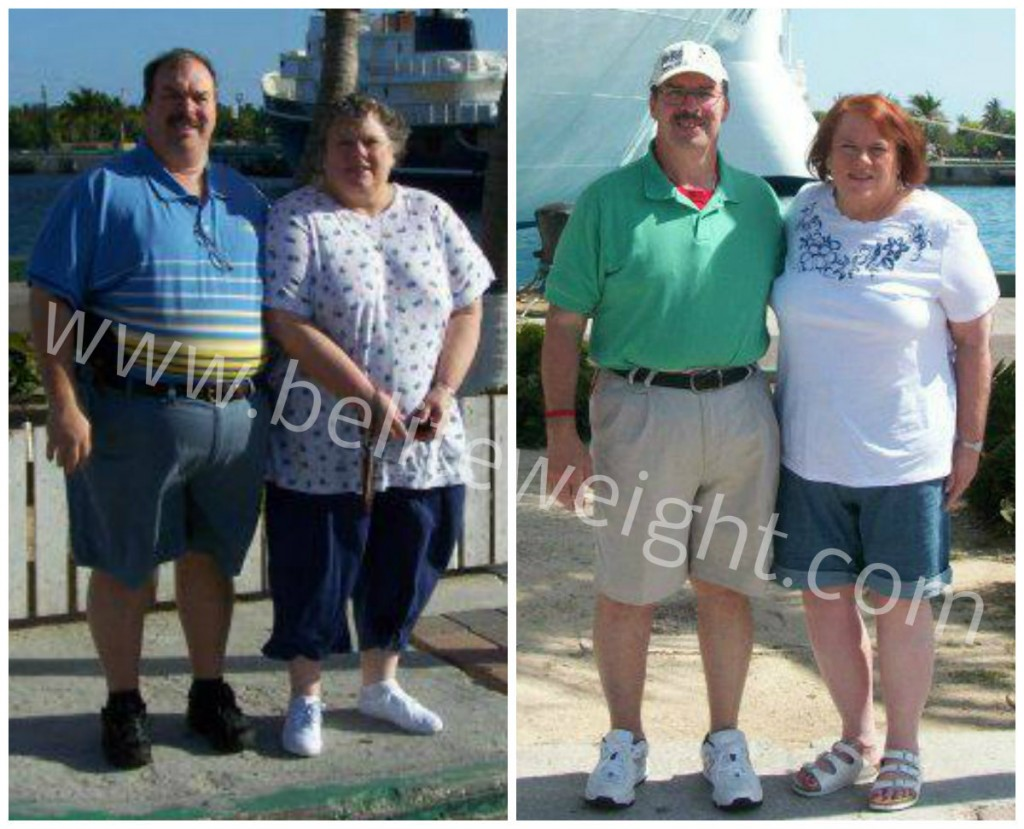 Almost Divorced Over Weight Loss Surgery In Mexico | #vsg #wls #weightloss #weightlosssurgery #gastricsleeve #beliteweight