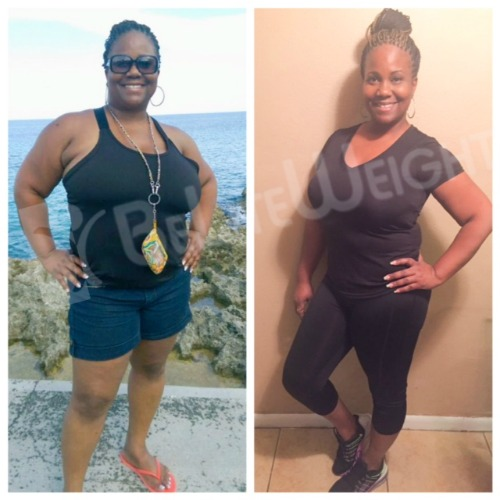 Weight Loss Surgery Before After Gastric Sleeve