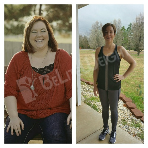 weight loss surgery vsg vertical sleeve gastric bypass