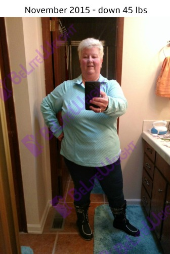 Deb K Gastric Bypass Revision Bariatric Weight Loss Surgery VSG
