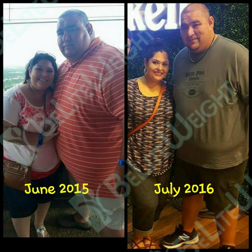 weight loss surgery before after vsg bariatric eduardo and maria