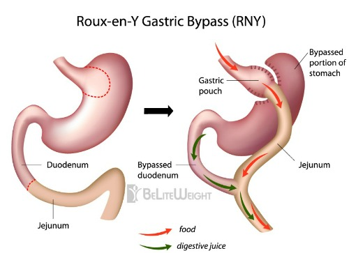roux-en-y roux en y gastric bypass bariatric weight loss surgery diagram visual
