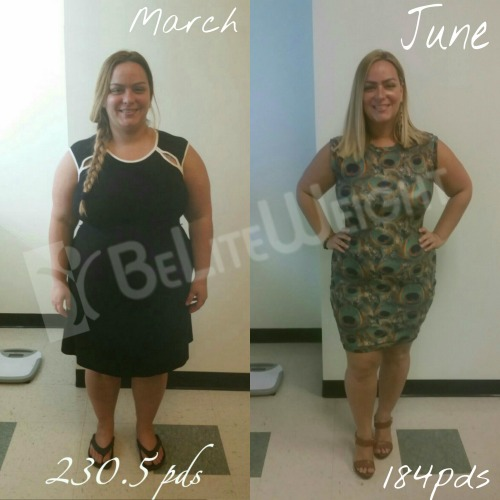 Weight Loss Surgery Before And After 3 Months Vsg