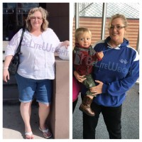 weight loss surgery before and after gastric sleeve bypass vsg