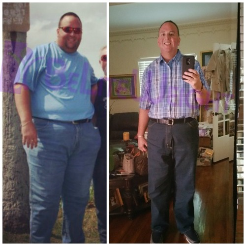 before and after weight loss surgery gasrtic sleeve bypass band reux en