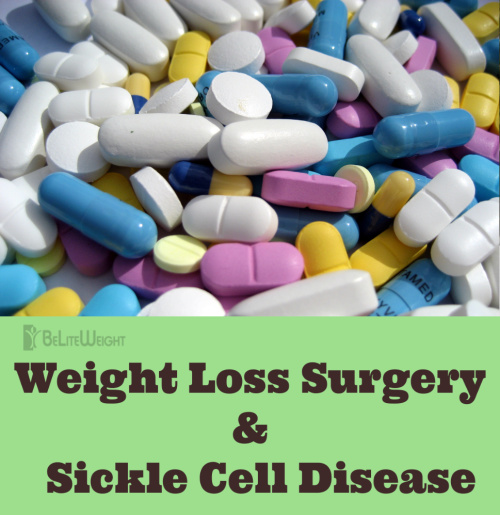 sickle cell weight loss surgery before and after vsg sleeve keto