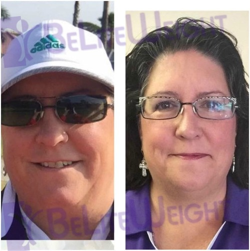 weight loss surgery before and after vsg gastric sleeve bypass band