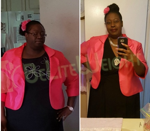weight loss surgery vsg vertical gastric sleeve bypass lap band before and after &