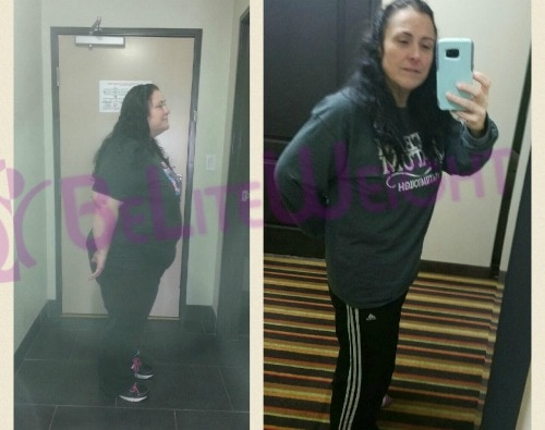 weight loss surgery before and after gastric sleeve bypass band vsg vertical