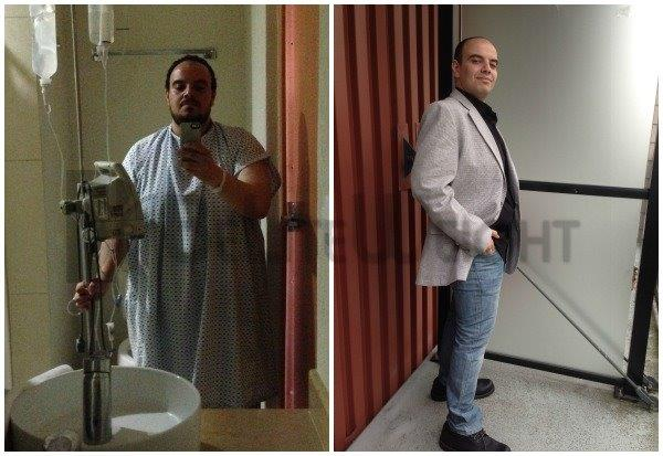 4 Months After Gastric Sleeve Surgery