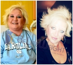 Before and After Weight Loss Gastric Sleeve Surgery