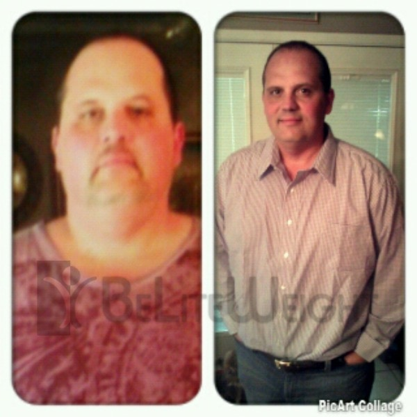 Revision of a prior weight loss surgery