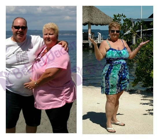 Weight Loss Surgery Vsg Vertical Gastric Sleeve Byp Mini Bariatric Laproscopic Surger