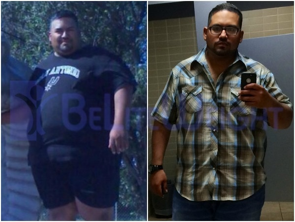 Ernesto - Gastric Sleeve Surgery Results