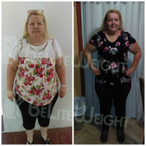 weight loss surgery before and after vsg gastric sleeve bypass bariatric healthy lose weight