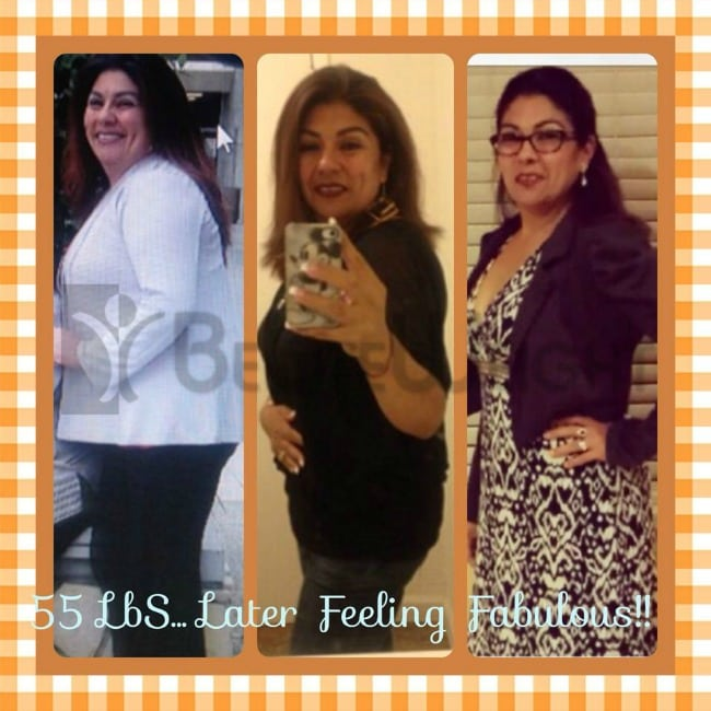 Maria Gastric Sleeve Surgery Before and After Photos
