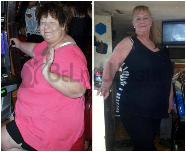 Weight Loss Surgery with Medicare