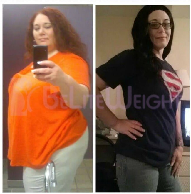 Gastric Bypass Weight Loss - 205 pounds