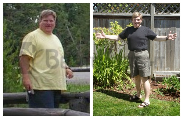 One Year After Gastric Sleeve Surgery