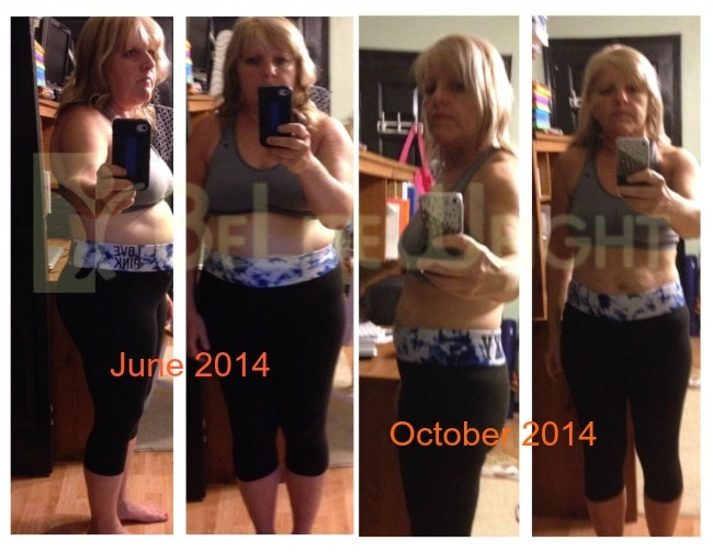 Gastric Sleeve Surgery Before and After