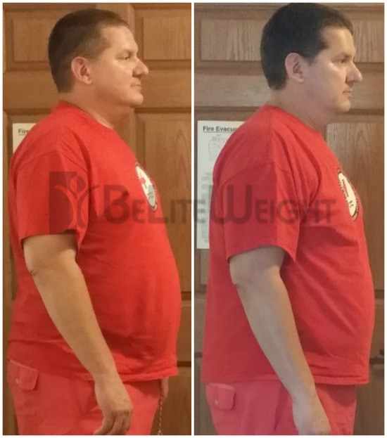 Quick weight loss after Gastric Sleeve surgery