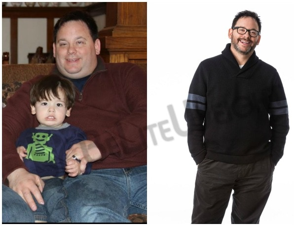 Tim - Before and After Sleeve Gastrectomy
