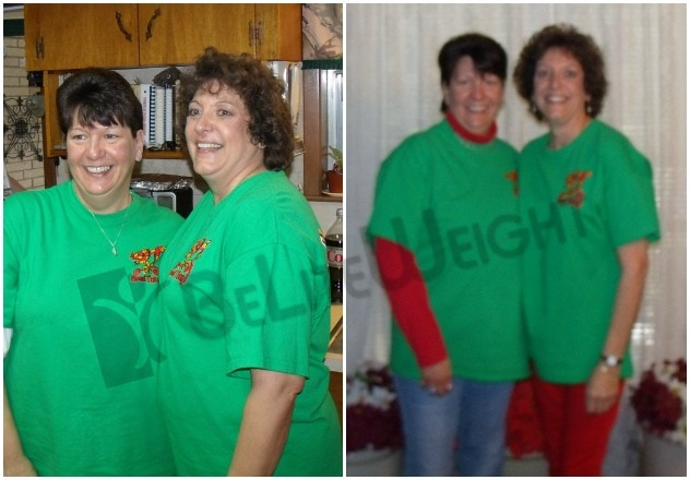 Wendy - Before and After Weight Loss Surgery