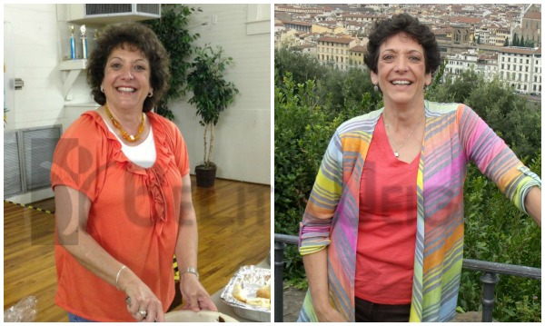 Wendy - One Year After Weight Loss Surgery