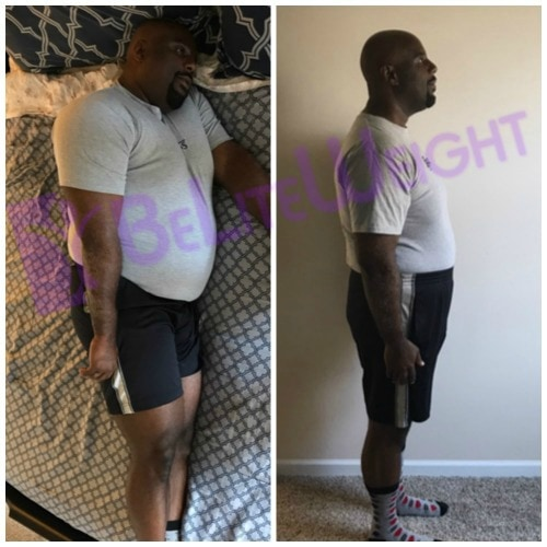 weight loss surgery before and after vsg gastric bypass sleeve vertical