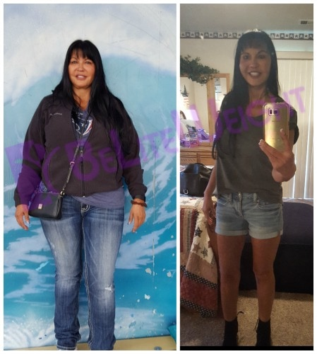 weight loss surgery before and after gastric sleeve bypass vsg vertical