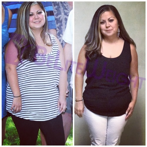 weight loss surgery before and after vsg vertical gastric bypass sleeve