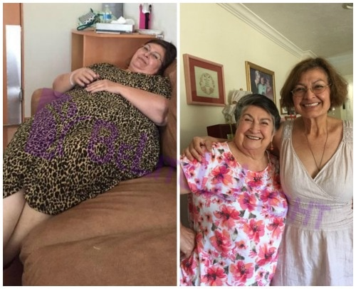 weight loss surgery before and after gastric sleeve bypass