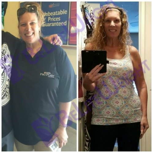 weight loss surgery vsg bariatric gastric sleeve band bypass before and after