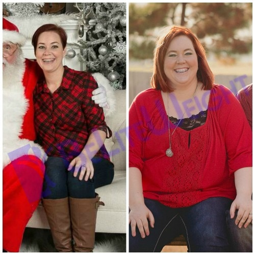 weight loss surgery vsg gastric sleeve before after photos testimonial bypass