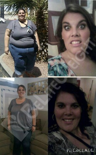 weight loss surgery success stories before and after vsg gastric sleeve bariatric
