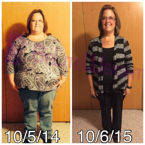 gastric bypass vsg surgery weight loss bariatric