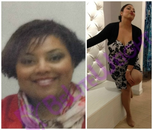 weight loss surgery before and after vsg gastric bariatric sleeve lap band bypass mini