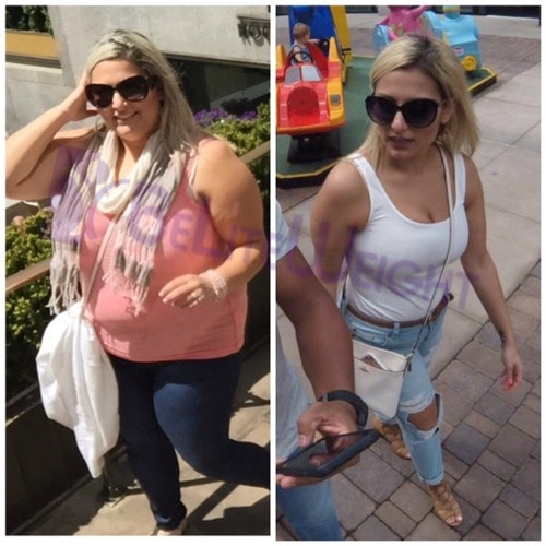 weight loss surgery sleeve band bypass vsg bariatric before and after beliteweight testimonial