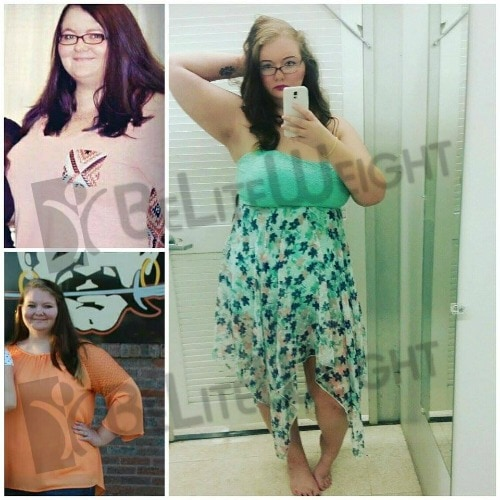 weight loss surgery bariatric gastric before after bypass sleeve mini