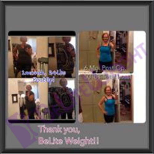 weight loss surgery success story before and after vsg gastric sleeve bariatric