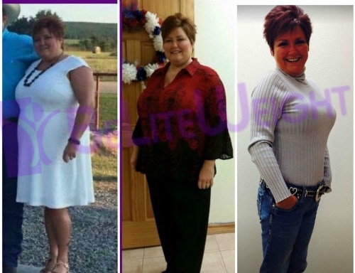 vsg gastric sleeve weight loss before and after surgery
