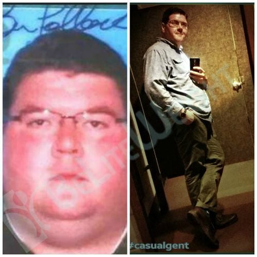 gastric Sleeve surgery Bariatric VSG Before and After
