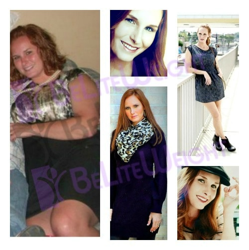 weight loss surgery vsg gastric sleeve before after photos testimonial mini gastric bypass